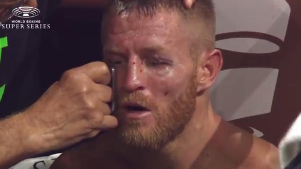 フラナガン顔が赤く左眉上を少しカットし出血【結果】レジス・プログレイスvs テリー・フラナガン