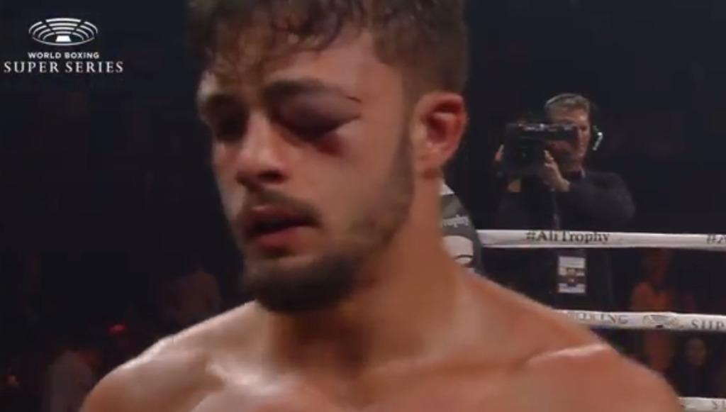 イギット左目がかなり腫れてしまう|試合結果 バランチェクvsイギット